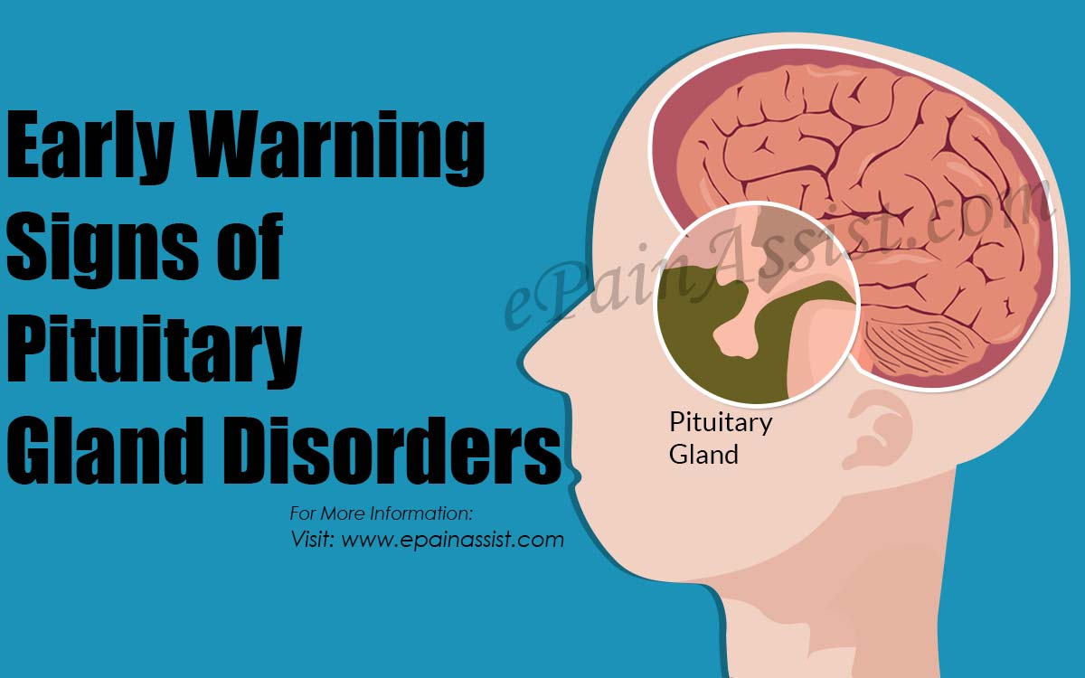 Early Warning Signs Of Pituitary Gland Disorders The Causes
