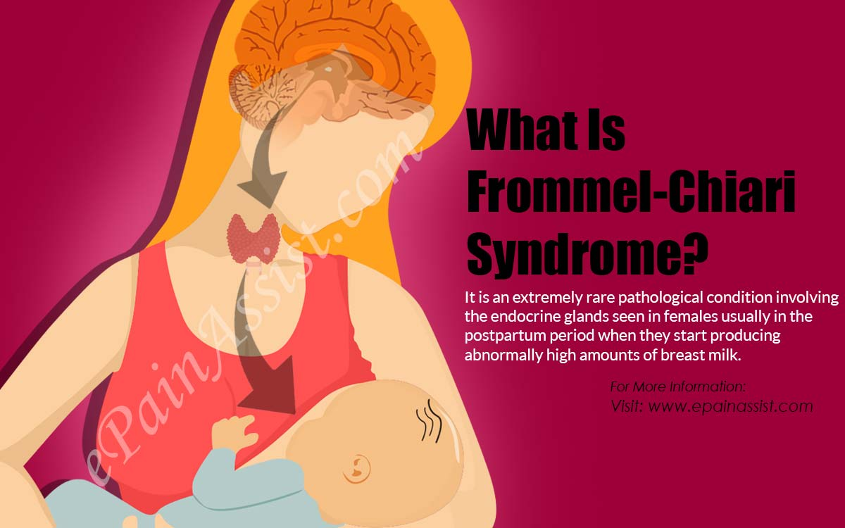 What Is Frommel-Chiari Syndrome?
