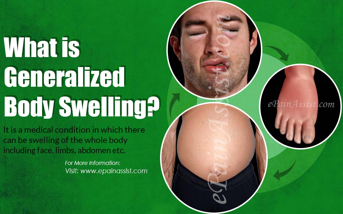 What is Generalized Body Swelling?