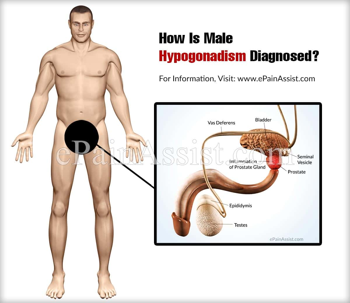 How Is Male Hypogonadism Diagnosed?