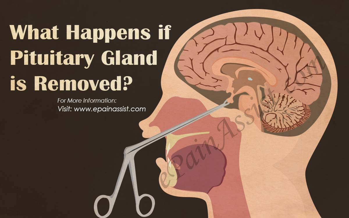 What Happens If Pituitary Gland Is Removed