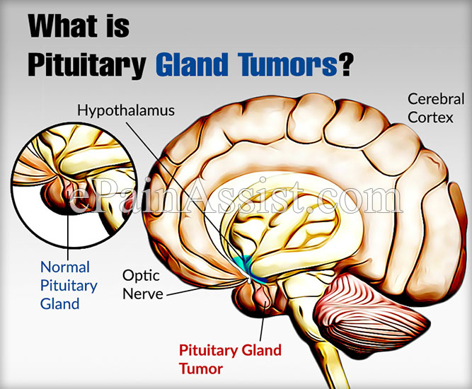 What Are Pituitary Gland Tumorscausessymptomstreatmentdiagnosis