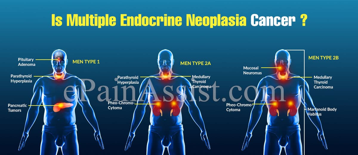 Is Multiple Endocrine Neoplasia Cancer?