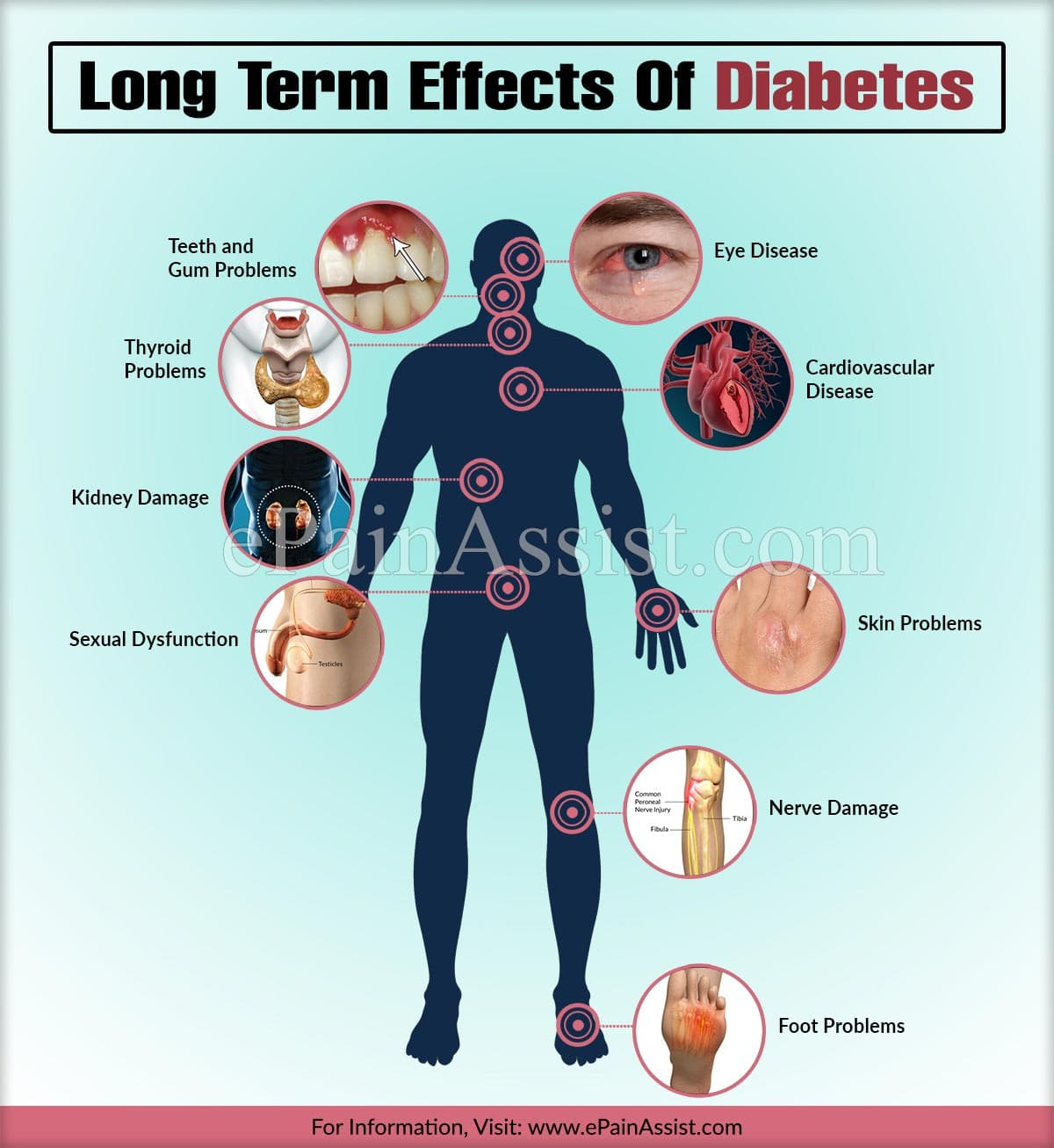 Long Term Effects Of Diabetes