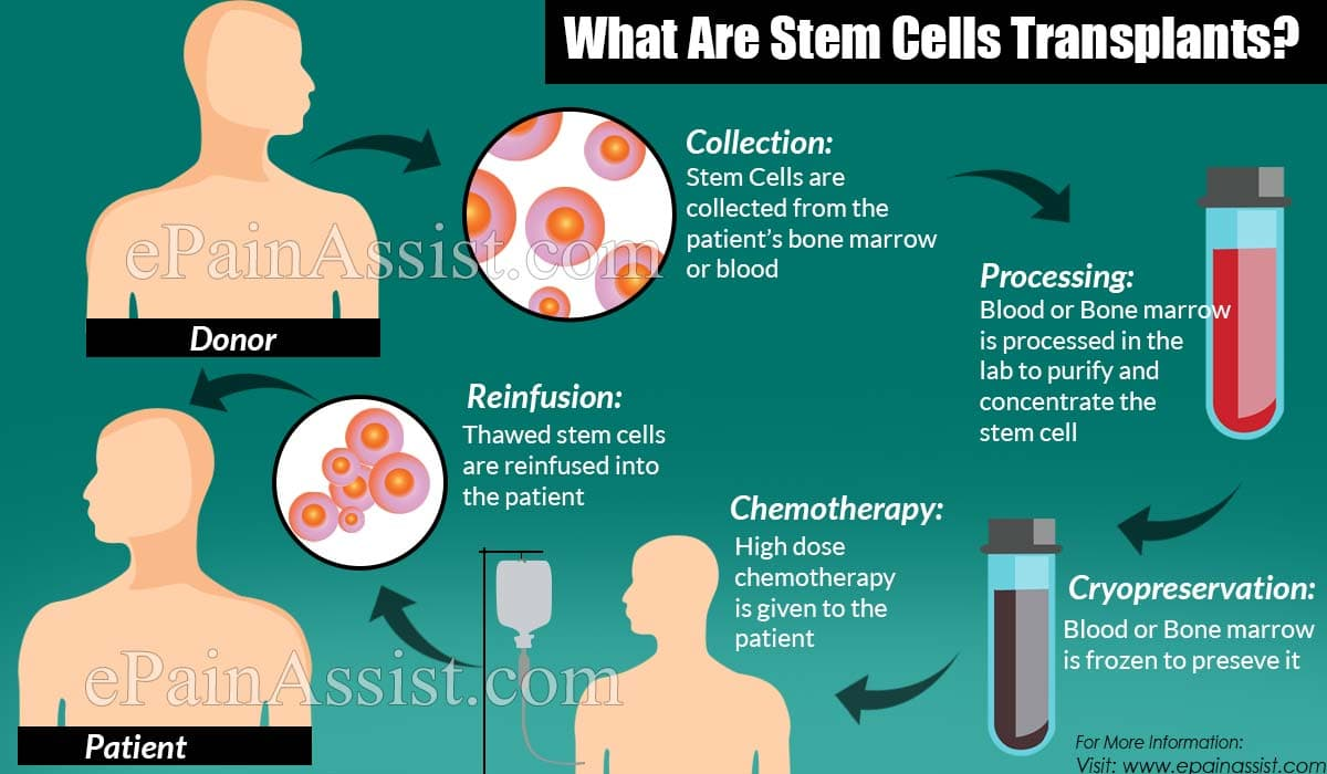What Are Stem Cells Transplants?