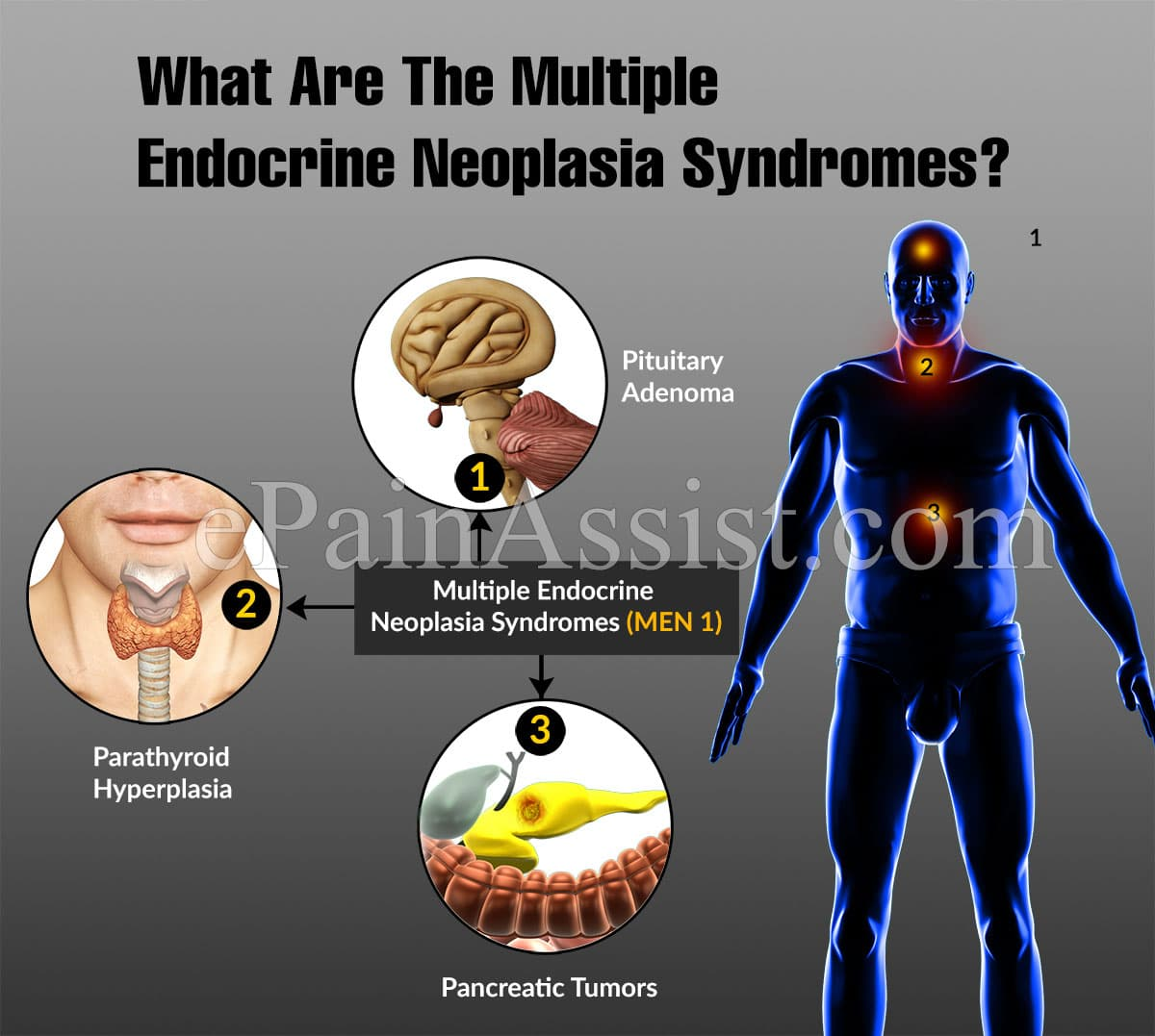 What Are The Multiple Endocrine Neoplasia Syndromes?