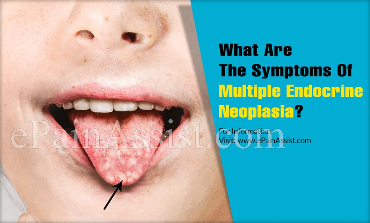 What Are The Symptoms Of Multiple Endocrine Neoplasia?