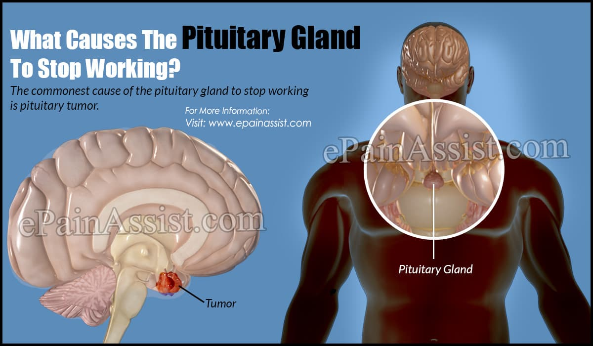 What Causes The Pituitary Gland To Stop Working?