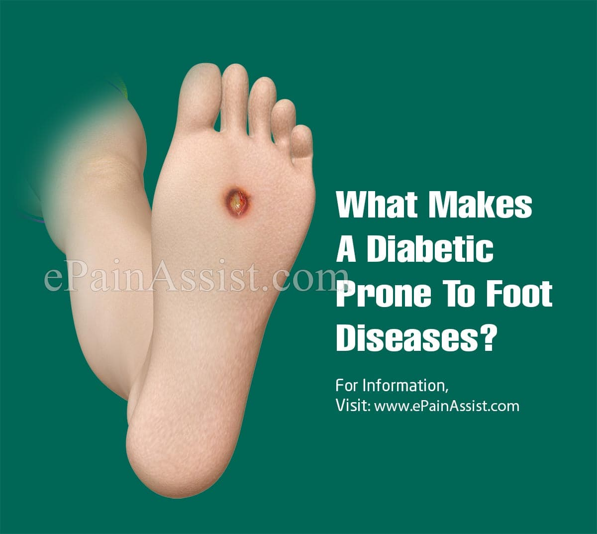 What Makes A Diabetic Prone To Foot Diseases?