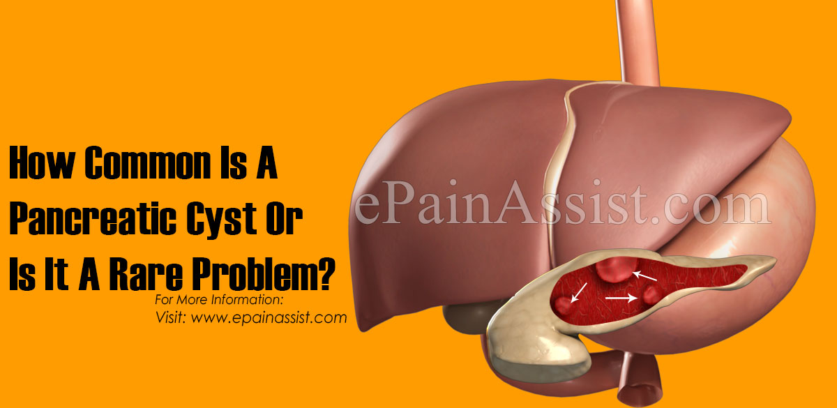 How Common Is A Pancreatic Cyst Or Is It A Rare Problem?
