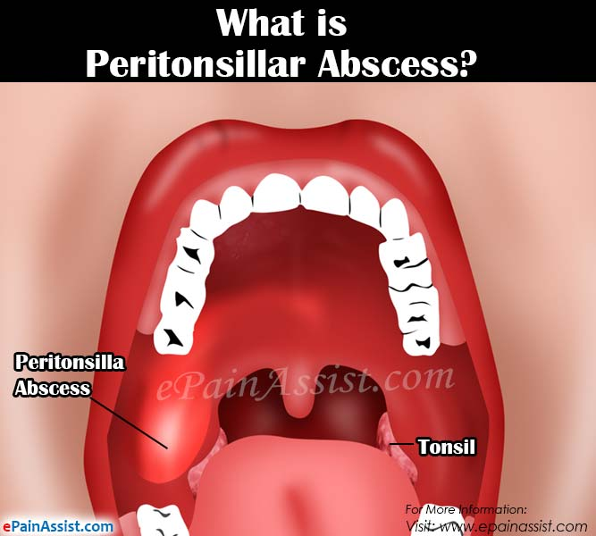 What is Peritonsillar Abscess or Quinsy?