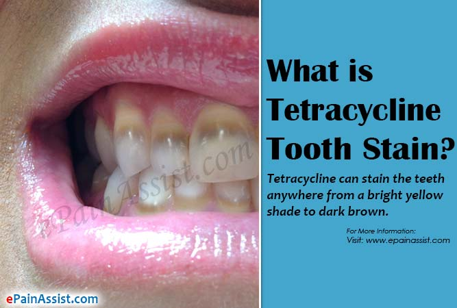 What is Tetracycline Tooth Stain?