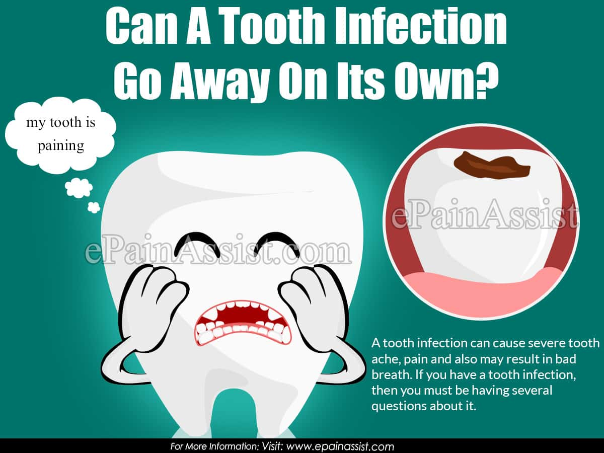 Can A Tooth Infection Go Away On Its Own?