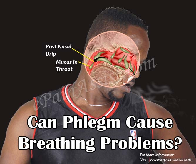Can Phlegm Cause Breathing Problems?
