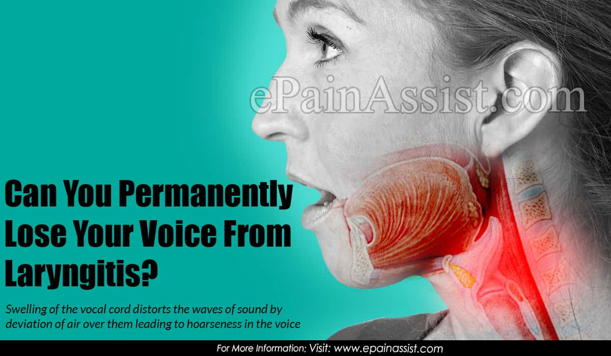 Can You Permanently Lose Your Voice From Laryngitis?