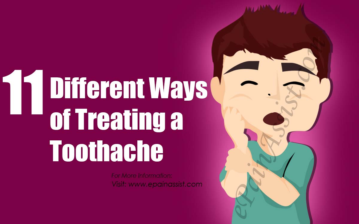 11 Different Ways of Treating a Toothache