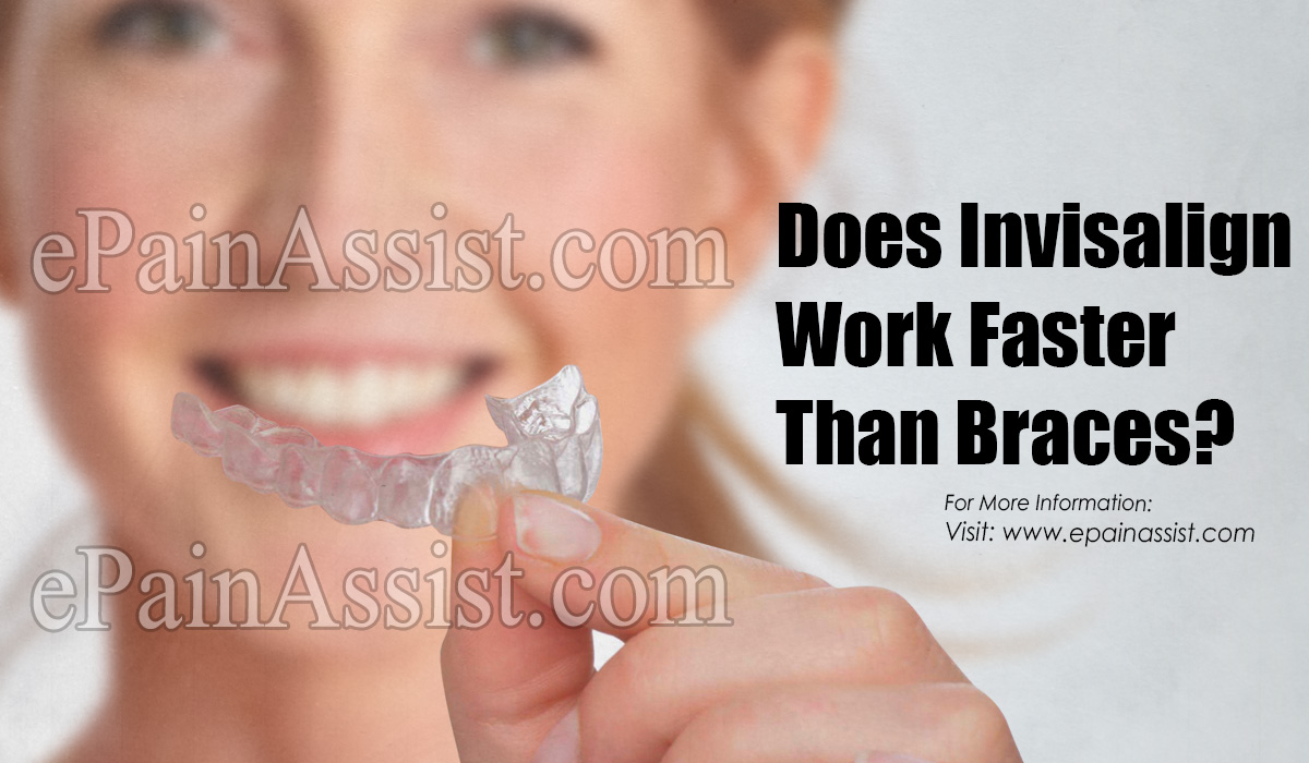 Does Invisalign Work Faster Than Braces?