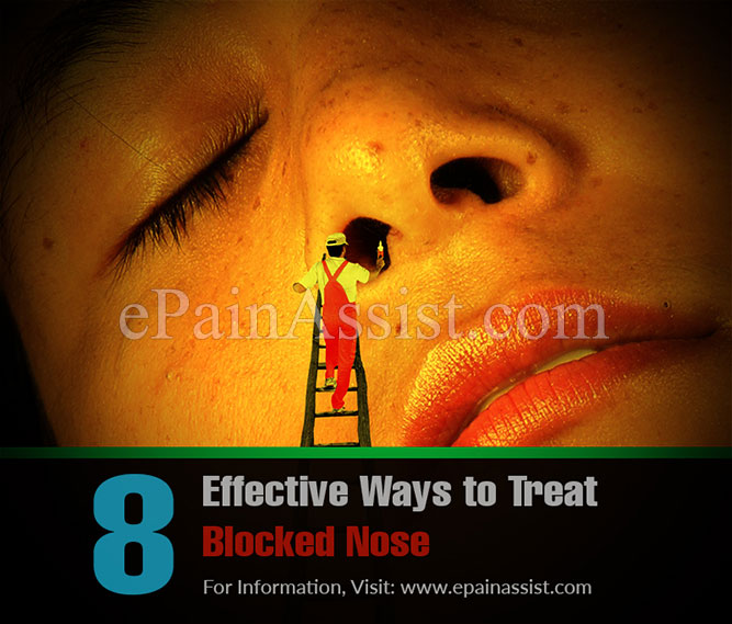 8 Effective Ways to Treat Blocked Nose