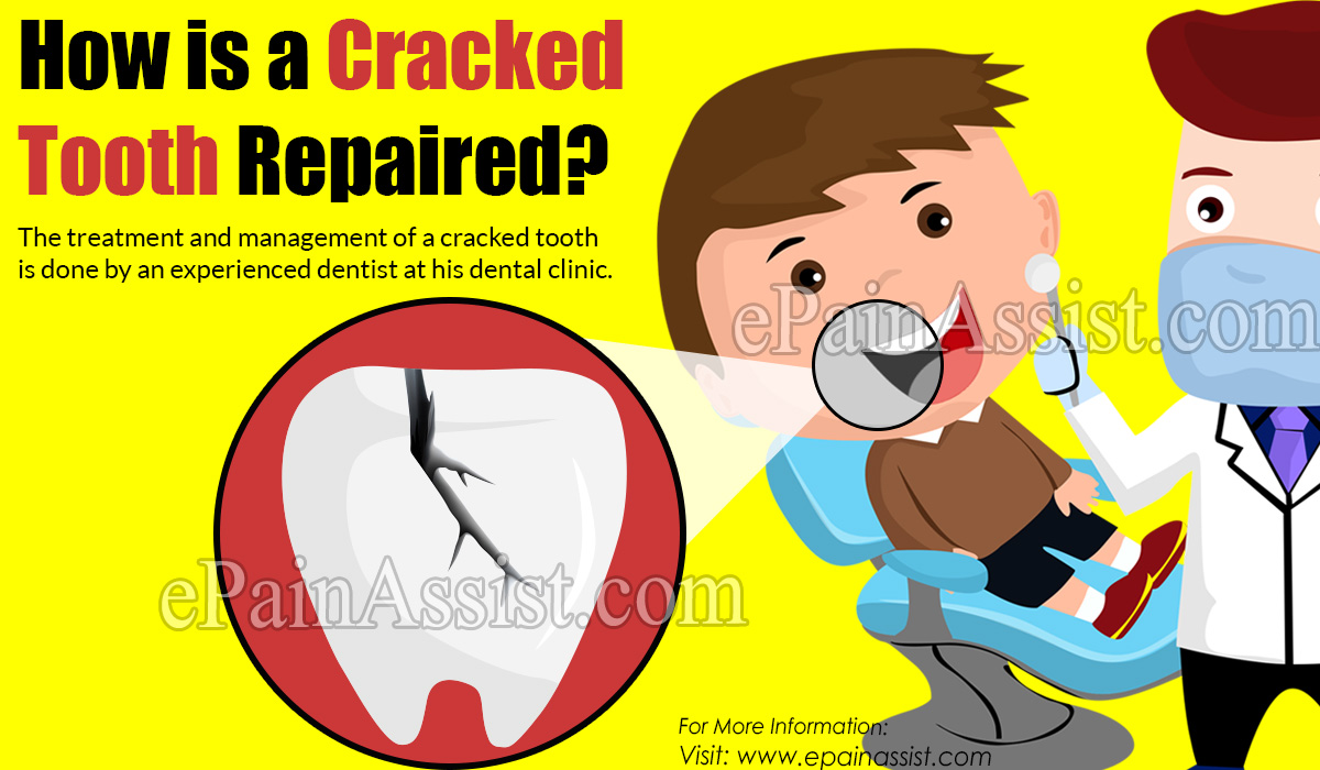 How is a Cracked Tooth Repaired?