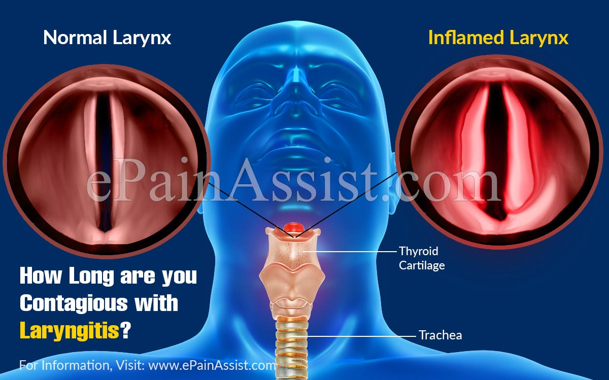 How Long Are You Contagious With Laryngitis?