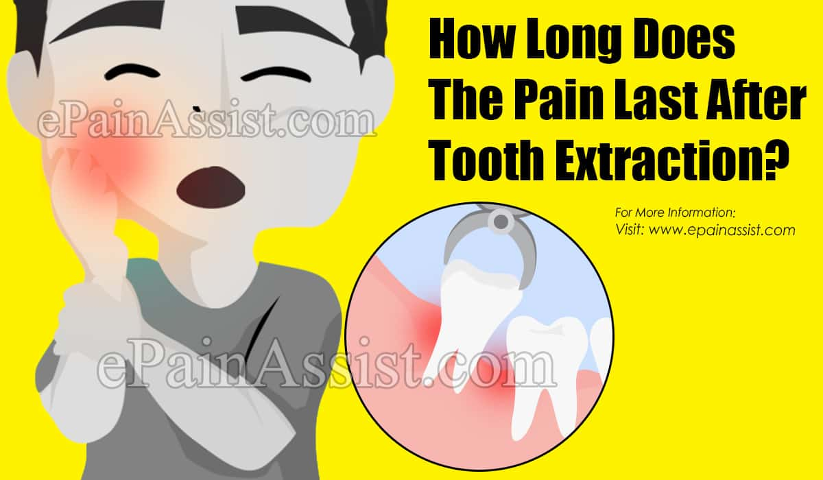 How Long Does The Pain Last After Tooth Extraction?