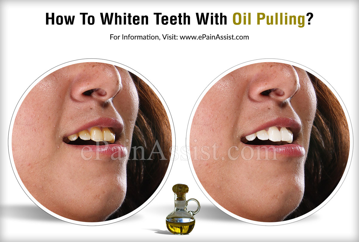 How To Whiten Teeth With Oil Pulling?