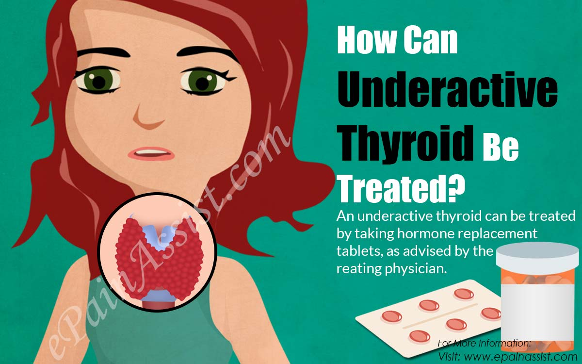 How Can Underactive Thyroid Be Treated?