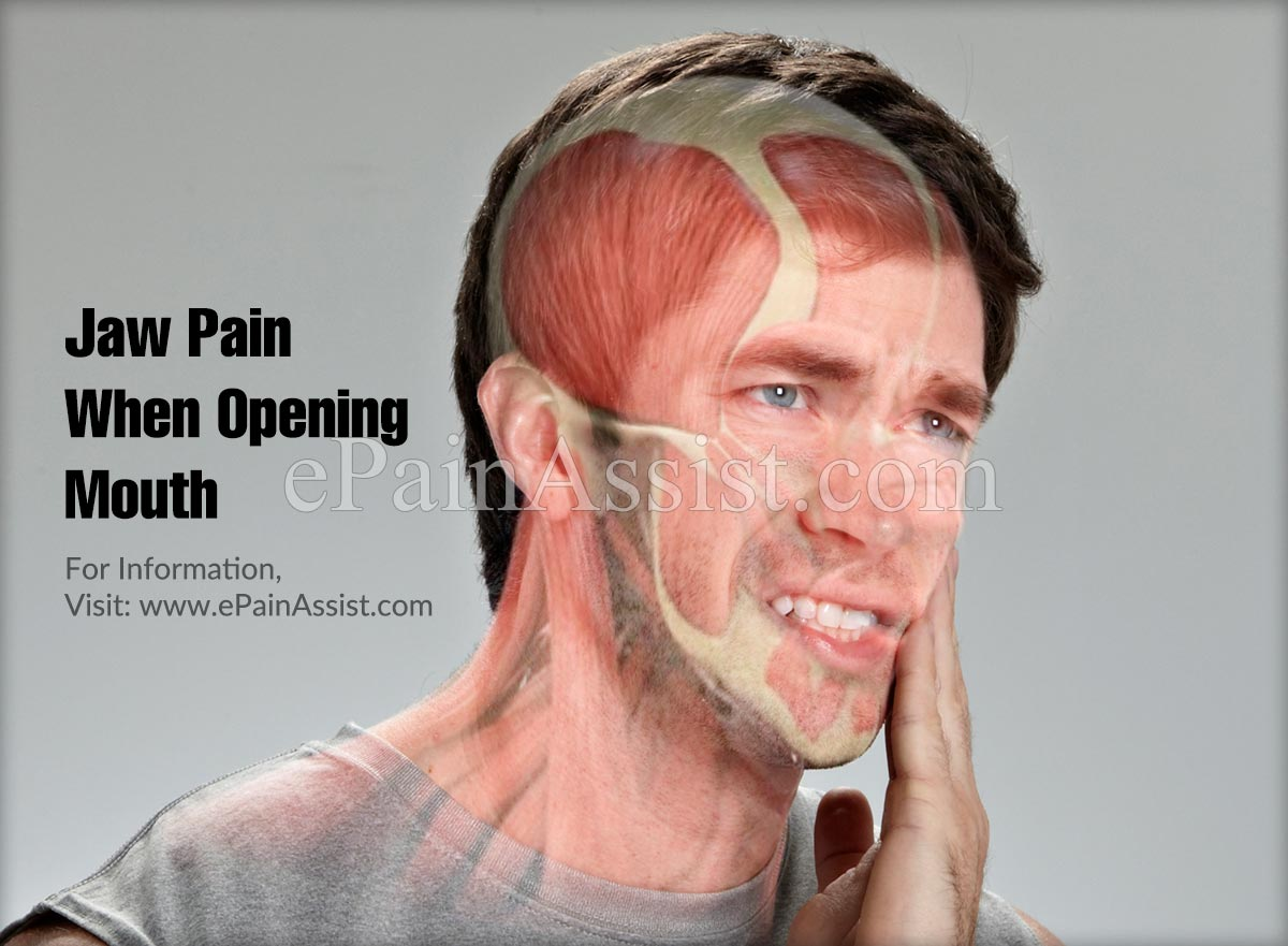 Jaw Pain When Opening Mouth
