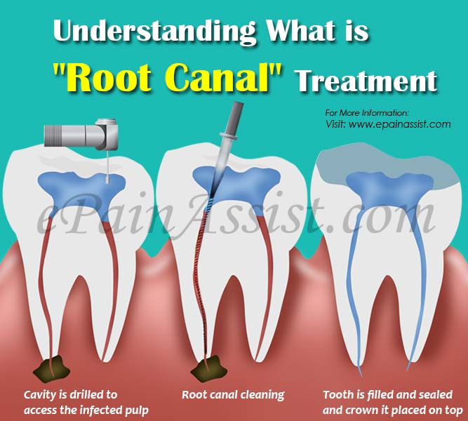 Understanding What is Root Canal Treatment