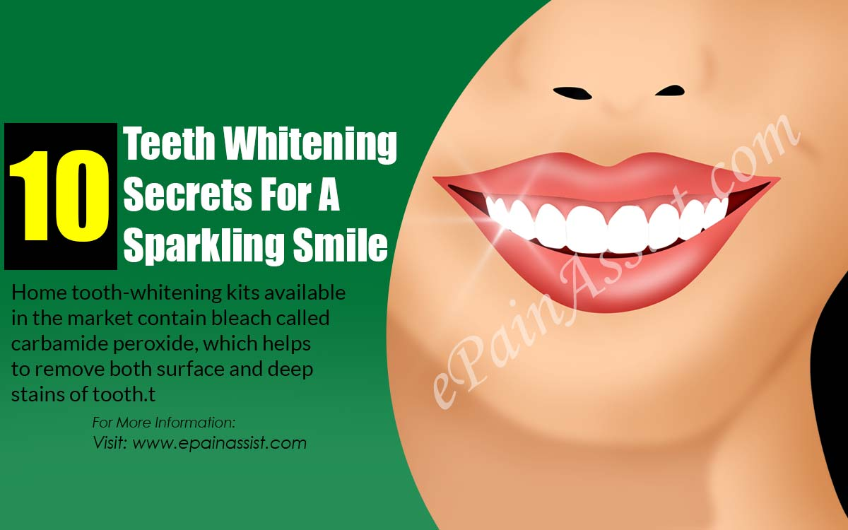 10 Teeth Whitening Secrets For A Sparkling Smile