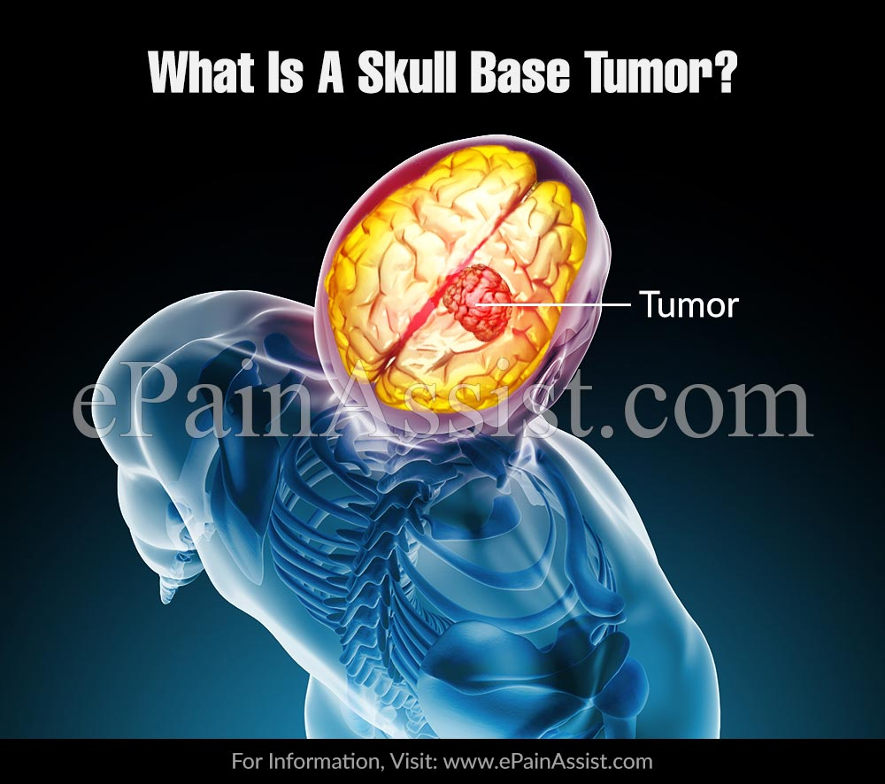 What Is A Skull Base Tumor And What Are Its Risk Factors?