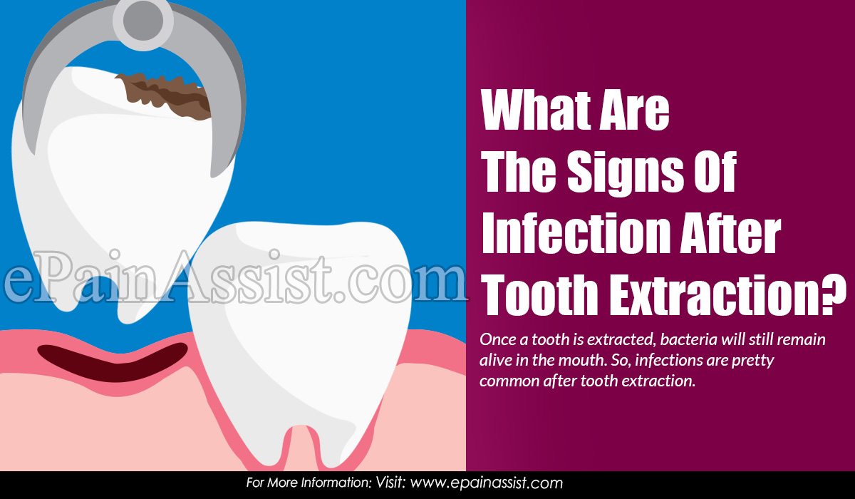 What Are The Signs Of Infection After Tooth Extraction