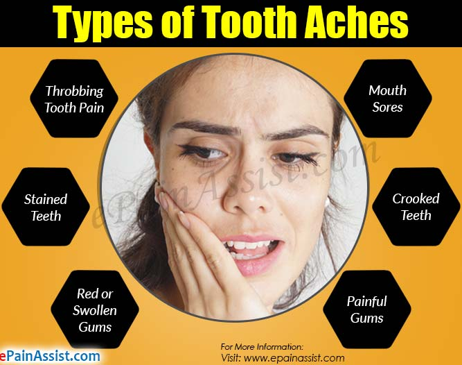 Types of Tooth Aches