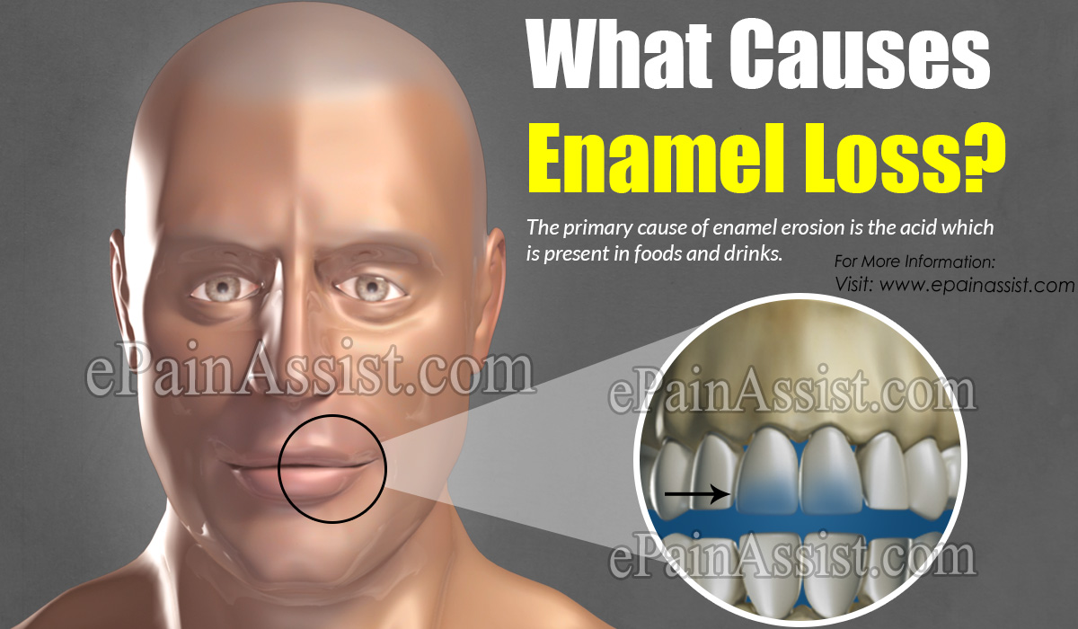 What Causes Enamel Loss?