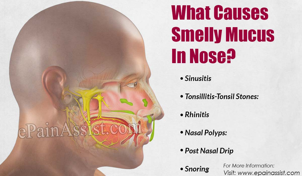 Green snot in an adult: causes and treatment 91