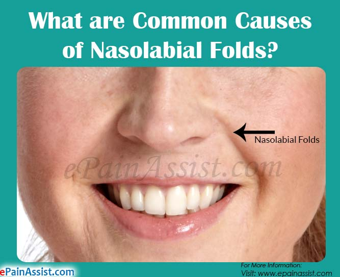 What are Common Causes of Nasolabial Folds?