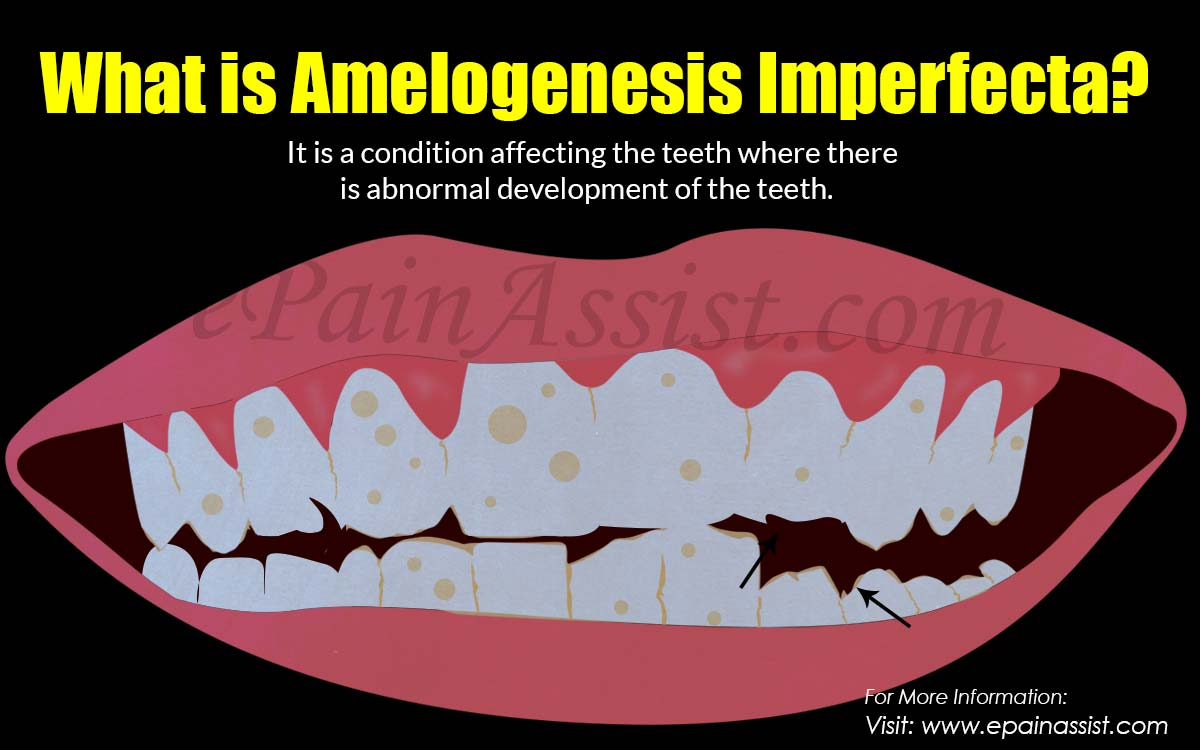 What is Amelogenesis Imperfecta?