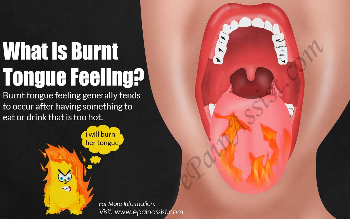 What is Burnt Tongue Feeling?