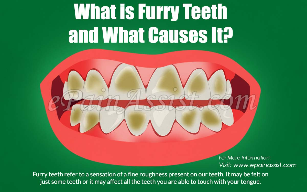 What is Furry Teeth and What Causes It?