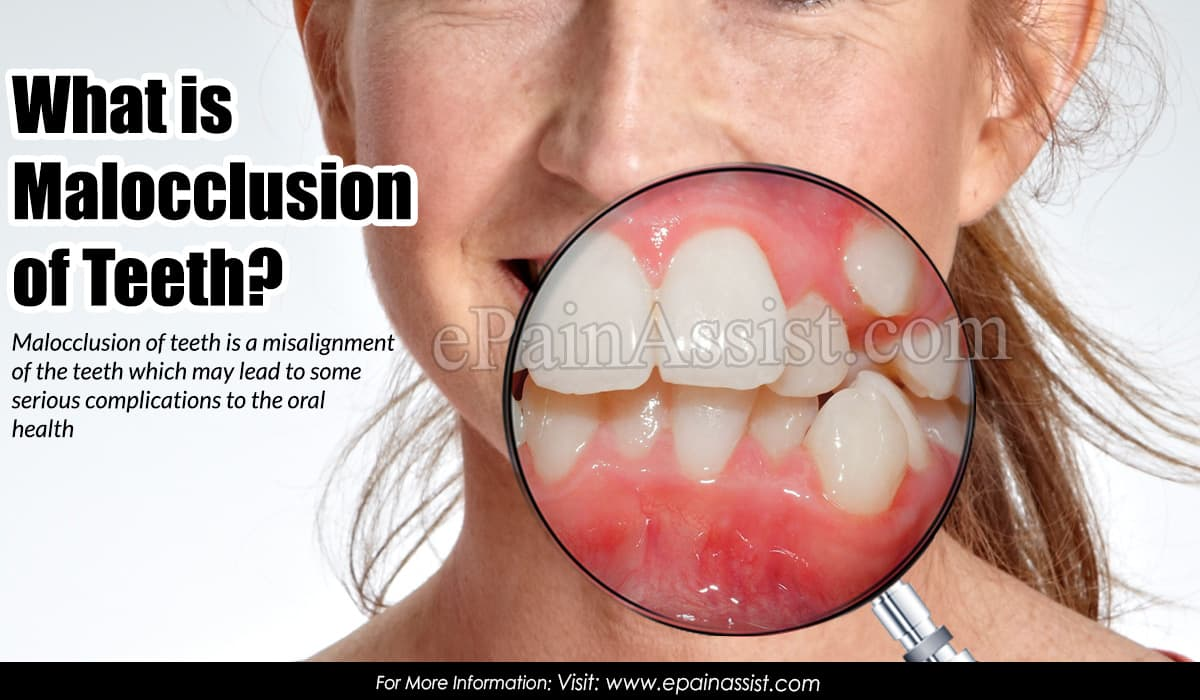 What is Malocclusion of Teeth?