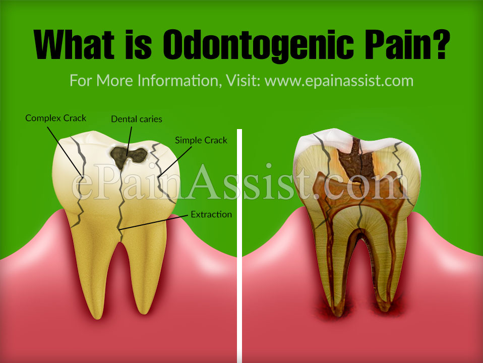 What is Odontogenic Pain?