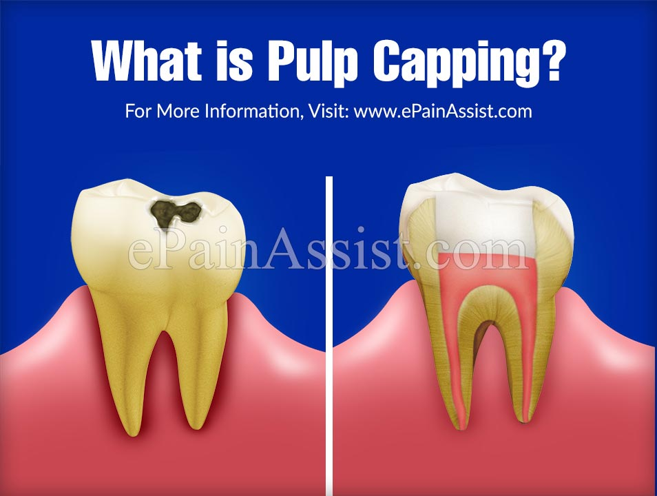 What is Pulp Capping?