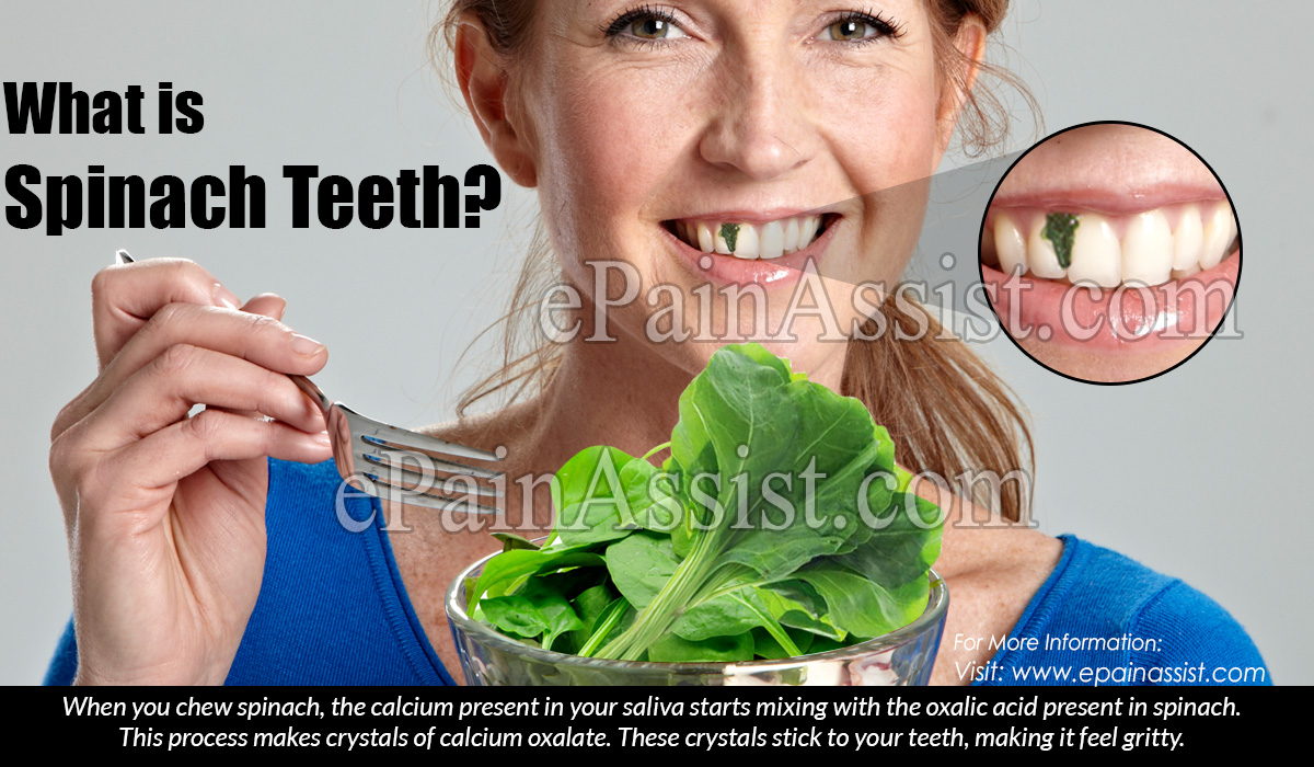 What is Spinach Teeth?