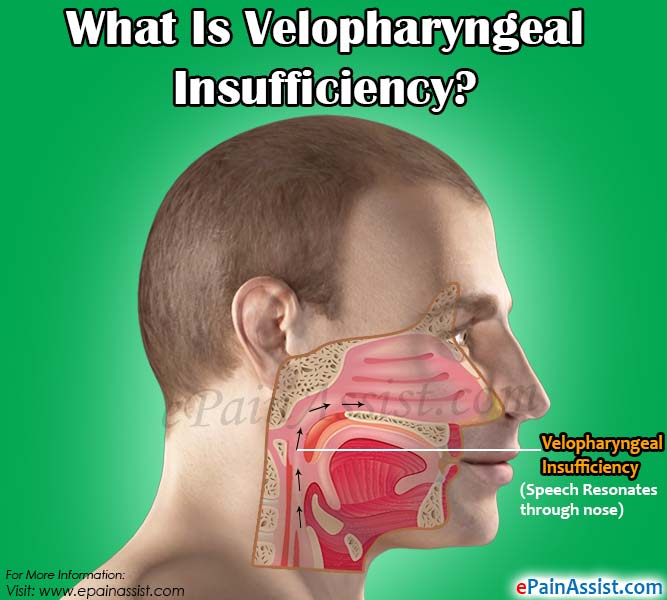 What Is Velopharyngeal Insufficiency?