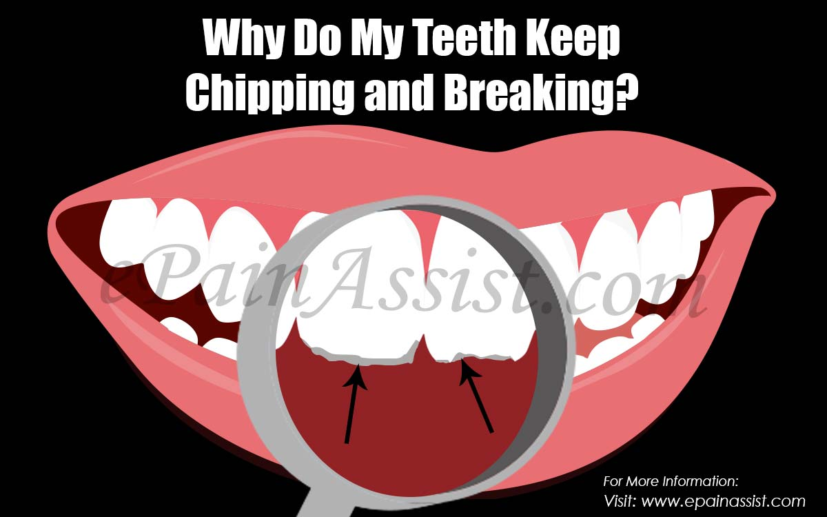 Why Do My Teeth Keep Chipping and Breaking?