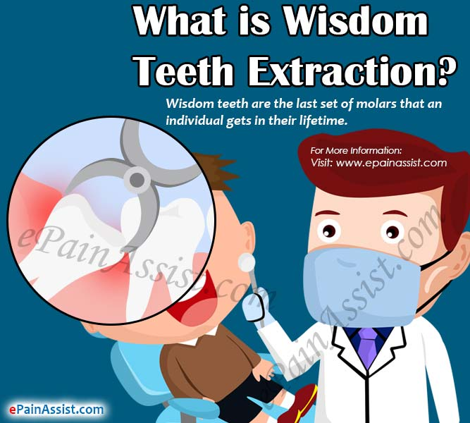 What is Wisdom Teeth Extraction?