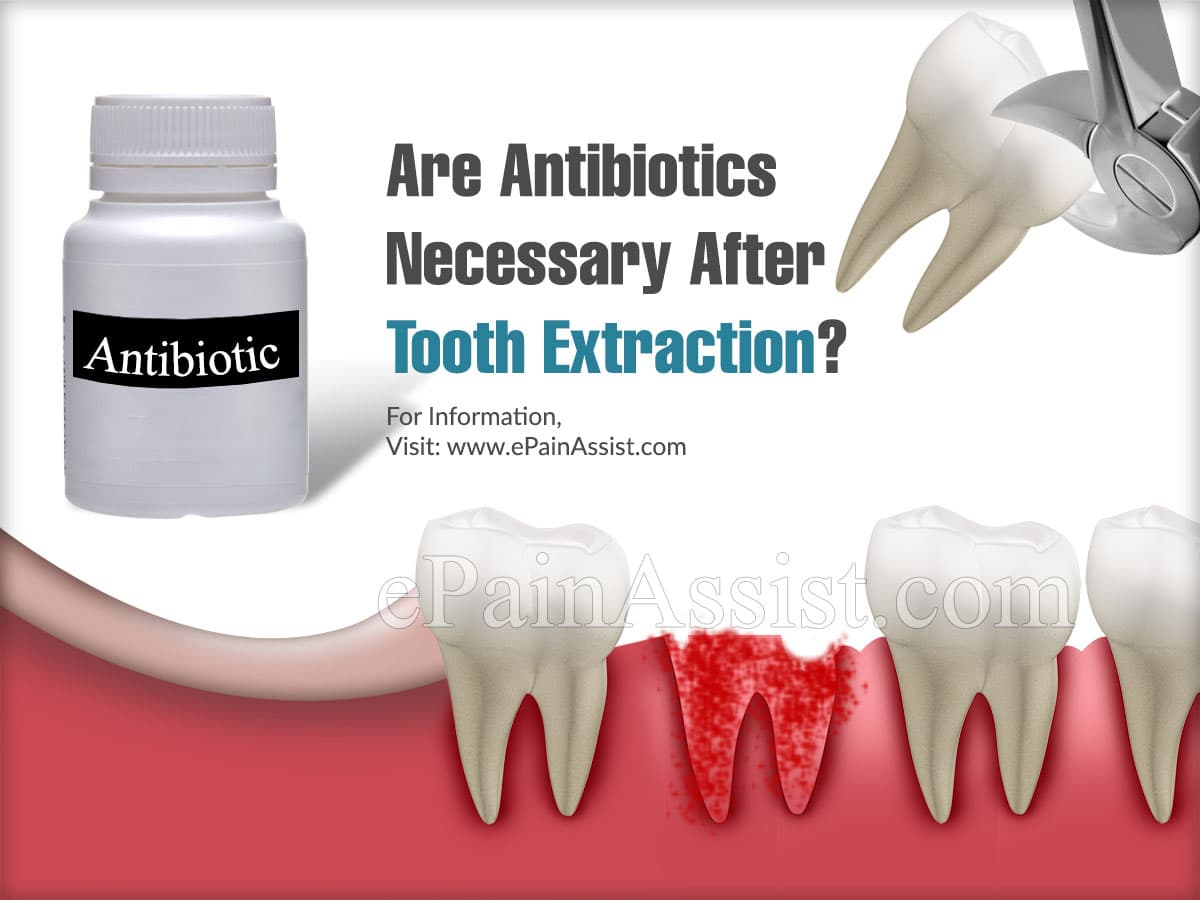 Are Antibiotics Necessary After Tooth Extraction?