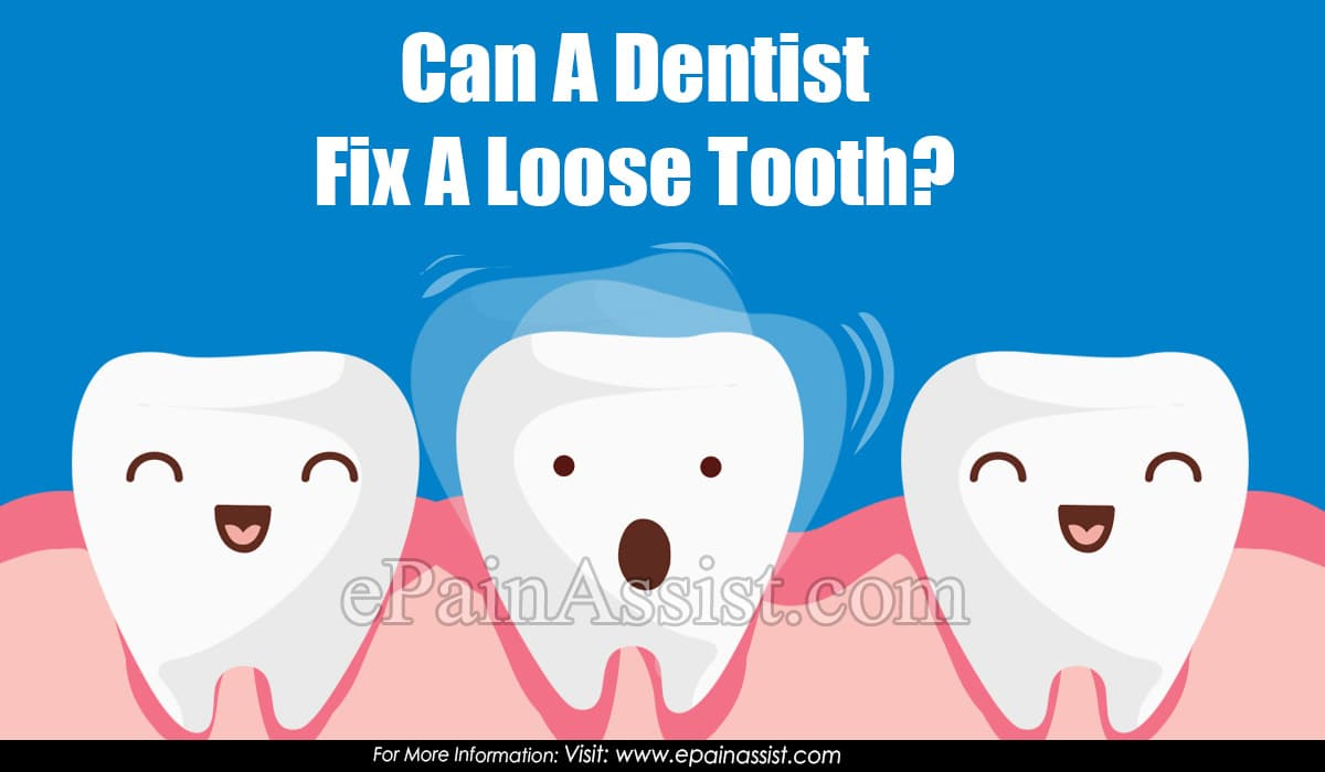 Can A Dentist Fix A Loose Tooth?