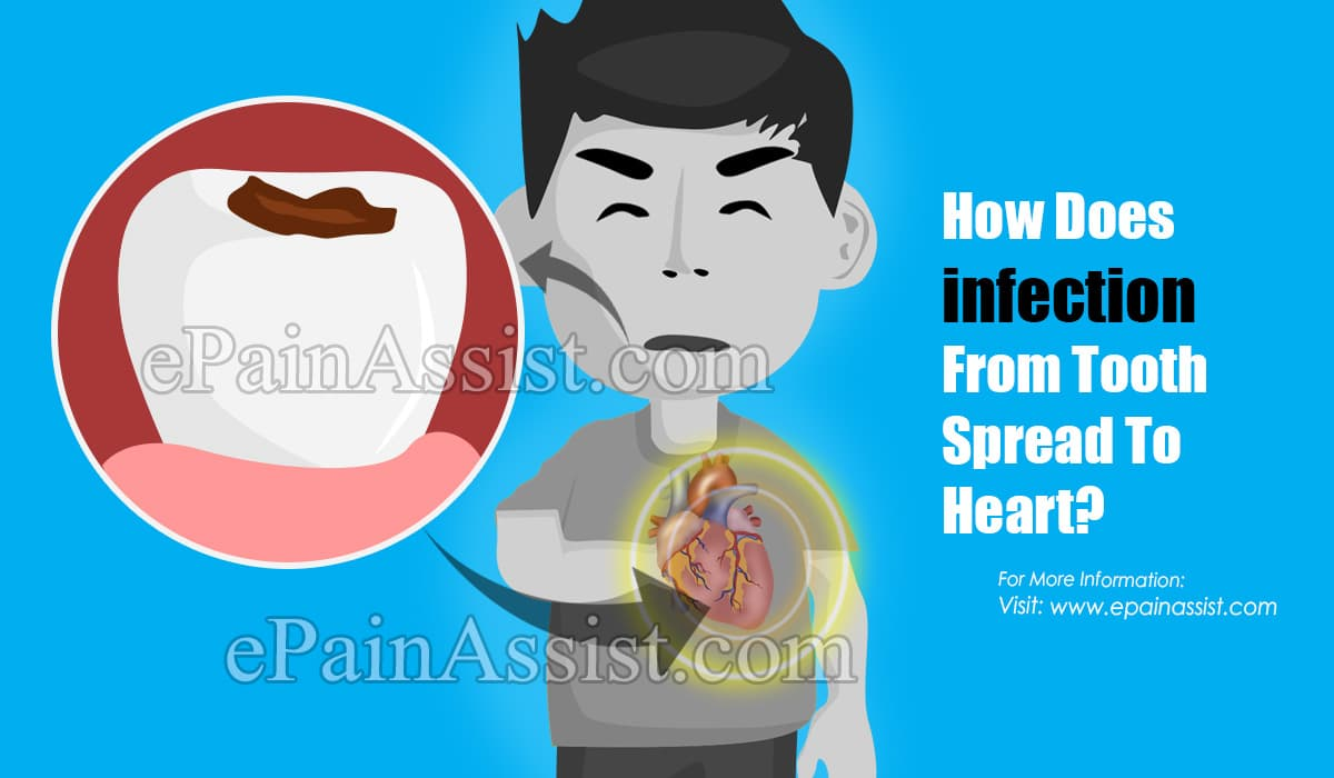 Can A Tooth Infection Spread To Your Heart?