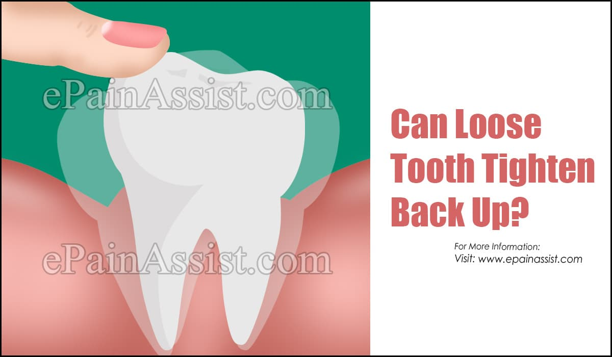 Can Loose Tooth Tighten Back Up?